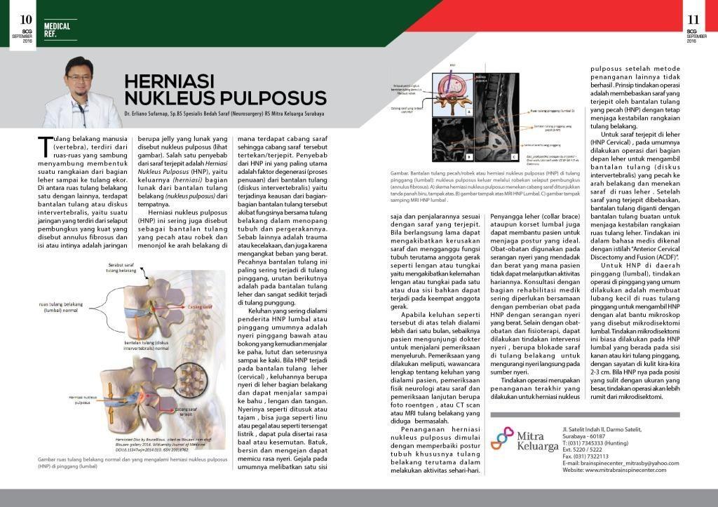 HNP (Herniasi Nukleus Pulposus)